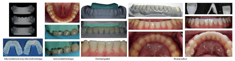 Non-Invasive Esthetics Dental Course
