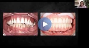 Complete Dentures Pearls for Preditablity Dental CE Webinar